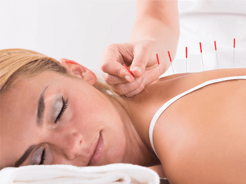 5 Questions on Acupuncture Answered