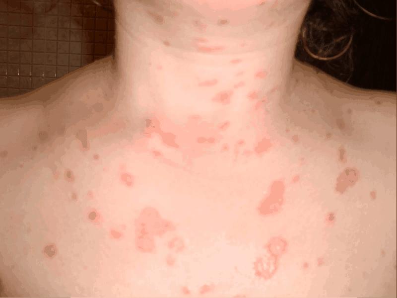 Arthritic Psoriasis